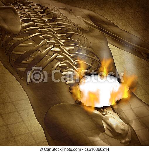 Human Painful Back  - csp10368244