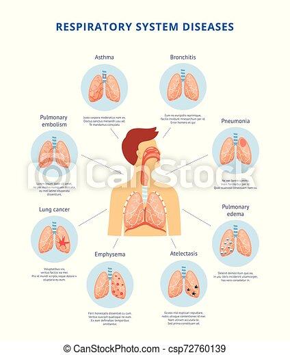 Human Respiratory System Diseases Informative Diagram Vector