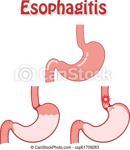 Human stomach in a flat style on a white background. Disease esophagitis. Problem of digestion, medical diagnosis, symptoms and causes of esophagitis. Work of the sphincter. Vector illustration - csp61709263