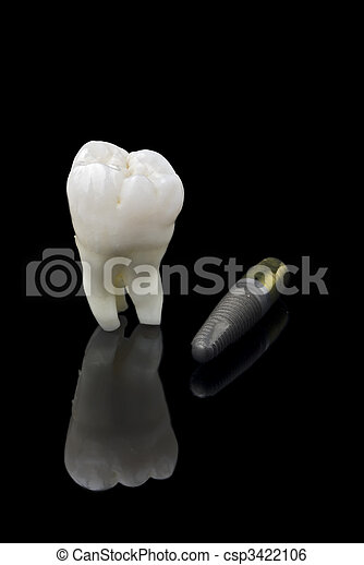 Human tooth and titanium implant - csp3422106