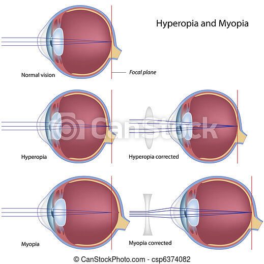 hyperopia, miopia, eps8 - csp6374082