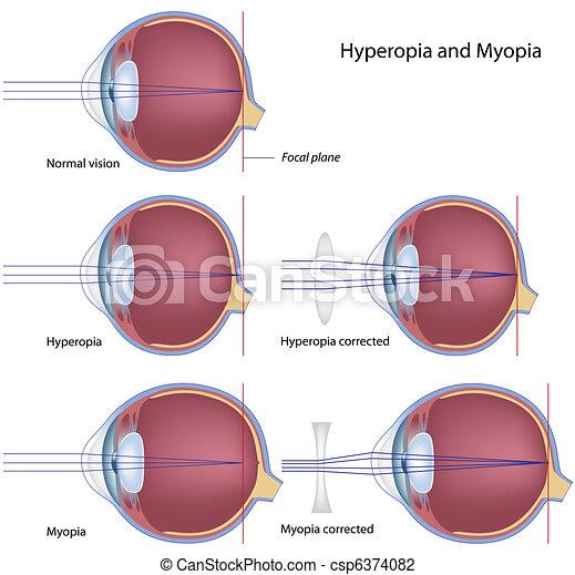 hyperopia, myopie, eps8 - csp6374082