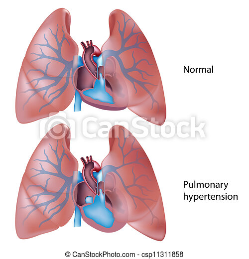 hypertensie, pulmonary, eps10 - csp11311858