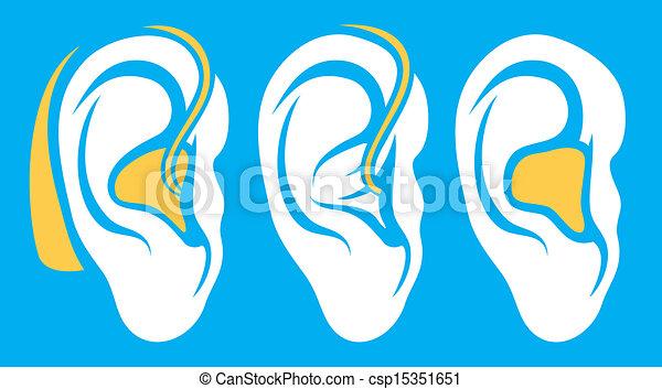 icônes, sourd, appareil acoustique, problème, oreille - csp15351651