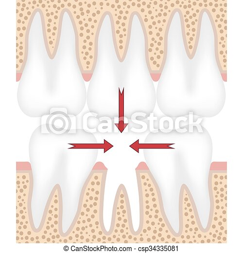 Illustration of missing tooth. - csp34335081