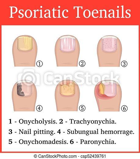 Illustration Of Psoriatic Toenails