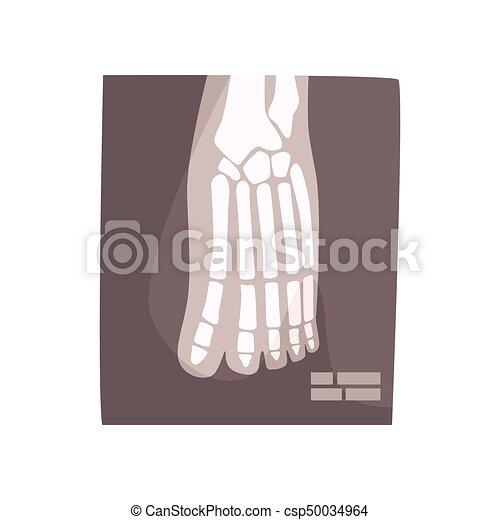 Dessin De Pied Humain image, illustration, vecteur, pied humain, x, dessin animé, rayon