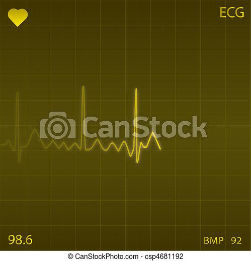 Image of a yellow heart monitor background. - csp4681192
