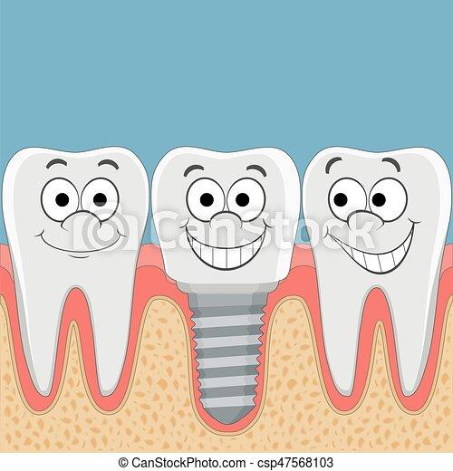 Implant., dental, dientes humanos. Illustration., dental, implant ...