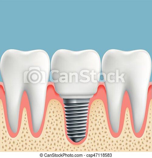 Implant., dental, dientes humanos. Illustration., dental,... vector ...