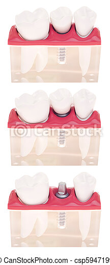 Implant dental model - csp5947199