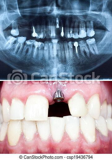 Implant dental - csp19436794