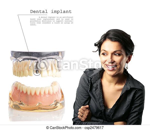 Implante dental - csp2479617