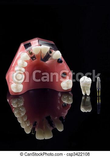 Dientes de viuda, Implant y modelo de dientes - csp3422108
