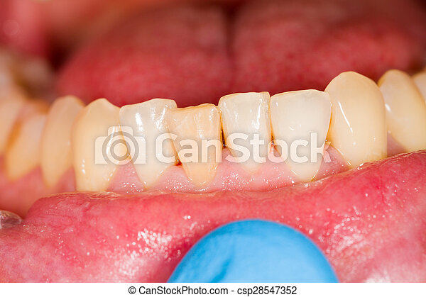 Incisors as Subject of Dental Photography - csp28547352