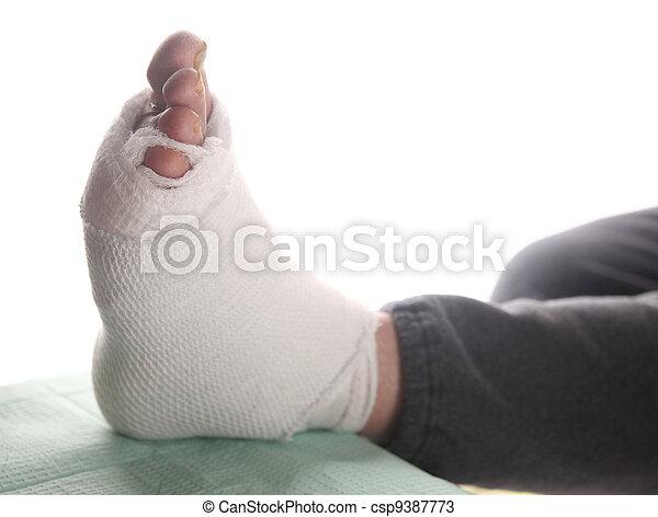 infected foot of diabetic - csp9387773