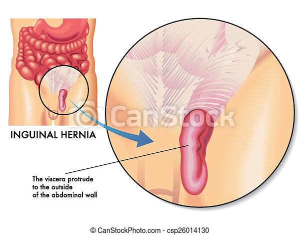 How to choose the right hernia brief...