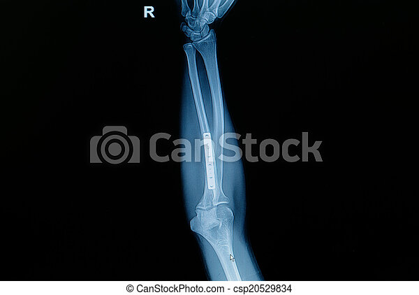 inse, unterarm, weisen, knochen, knochenbrüche, röntgenaufnahme ...