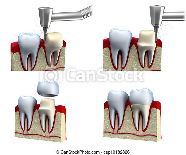 Proceso de instalación de la corona dental - csp10182826