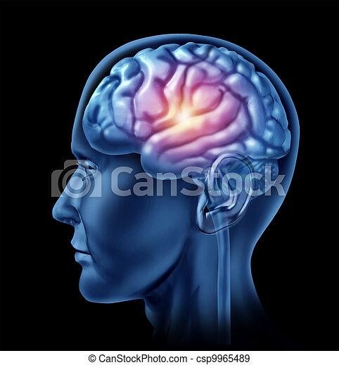 intelligence, cerveau, activité - csp9965489