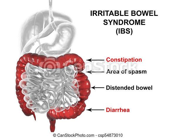 irritable bowel syndrome svenska