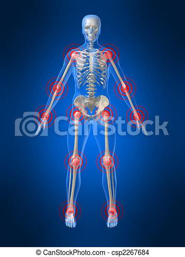 joints, enflammé - csp2267684