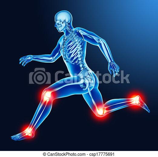 jointure, douleur, jambe - csp17775691