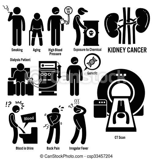 Kidney Cancer - csp33457204