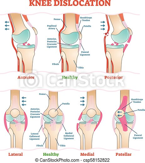 Knee dislocations - medical vector illustration diagrams. anatomical ...