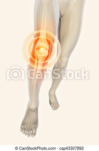 Knee painful - skeleton x-ray. - csp43307892
