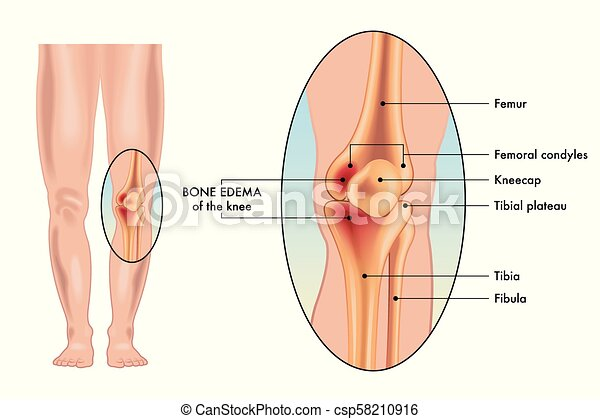Knie knochen, ödem. Ödem, medizinische abbildung, symptome, vektor ...