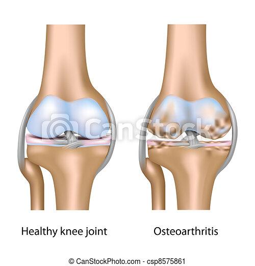 Osteoarthritis am Kniegelenk Eps10 - csp8575861