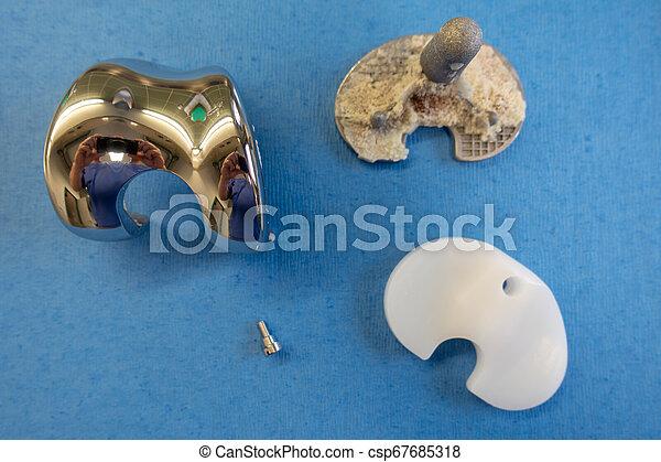 knie, prothese, entfernt, implantate - csp67685318