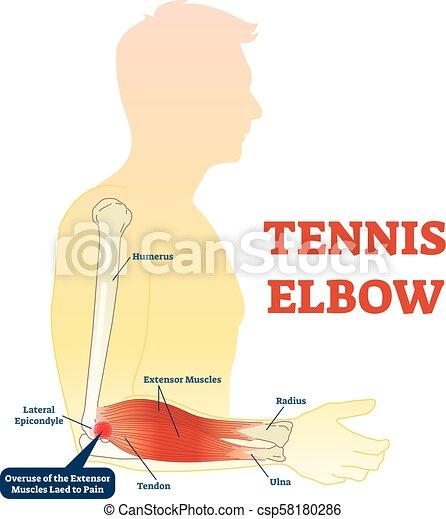 Koerperbau, muscles., tennis, abbildung, knochen, diagramm, gelenk ...