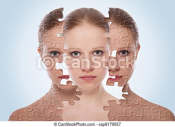 Konzept der kosmetischen Wirkung, Behandlung und Hautpflege. Gesicht einer jungen Frau vor und nach dem Eingriff - csp9179557