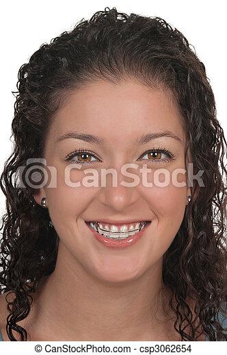 Kosmetische Zahnspange - csp3062654