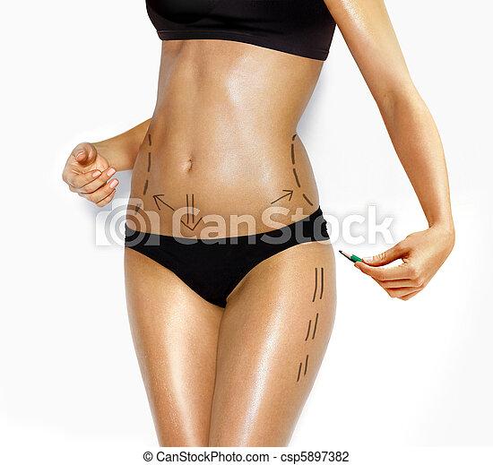 krop, rettelse, kvinde, kosmetisk kirurgi - csp5897382