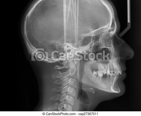 Lateral cephalometric radiograph - csp27367011