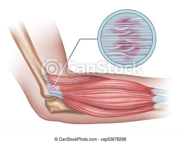 Lateral Epicondylitis Tennis Elbow Diagram Showing A Detail Of The