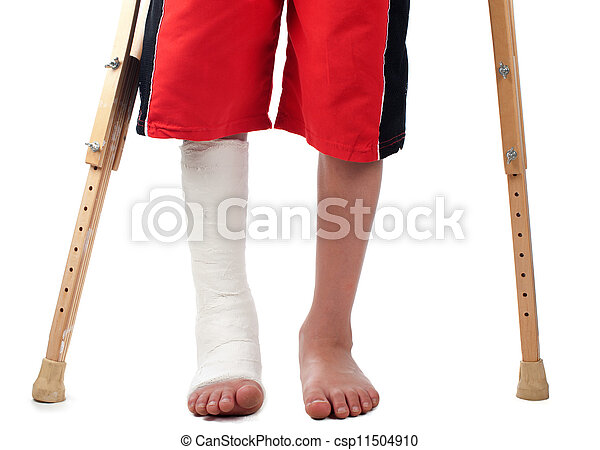 Leg fracture - csp11504910