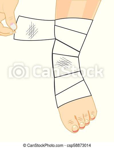 Leg in bandage - csp58873014
