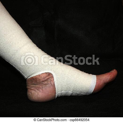Leg. Varicose, veins. Phlebeurysm. Thrombophlebitis. Elastic bandage. - csp66492054