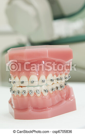 lower and upper dental jaw braces model - csp6705836