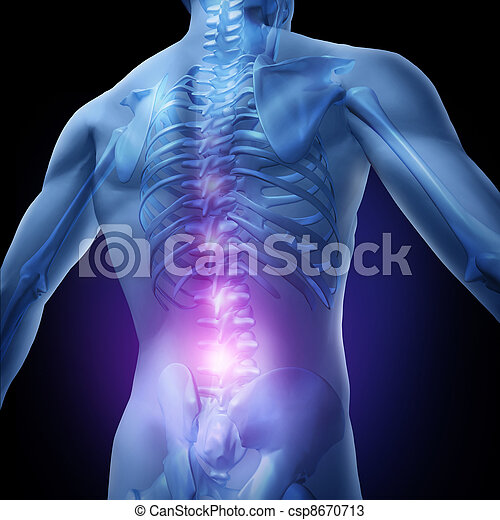 Lower Back Pain - csp8670713