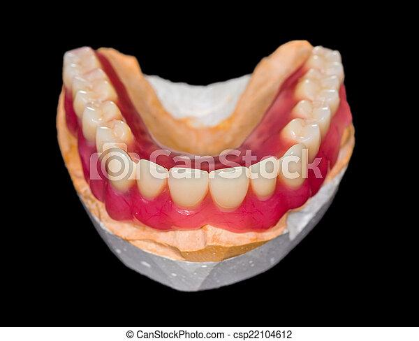 Lower denture - csp22104612