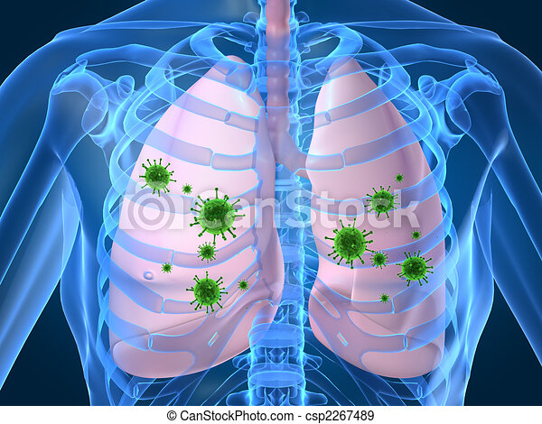 lung infection - csp2267489