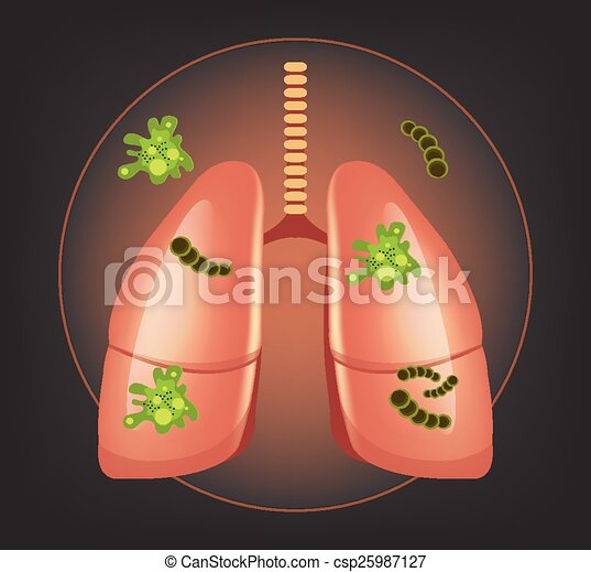 Lungs with germs and bacteria - csp25987127