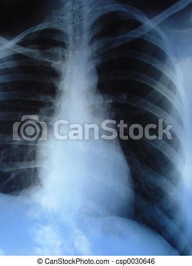 Lungs xray - csp0030646