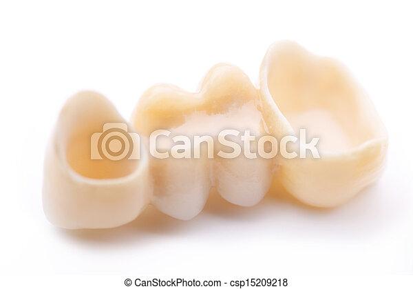 Macro of three prosthetic teeth - csp15209218