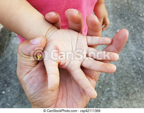 main., brulure, blessure, main, père, fer, enfant